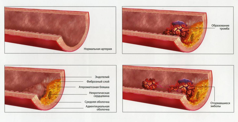 лечение холестерина чесноком с лимоном и медом