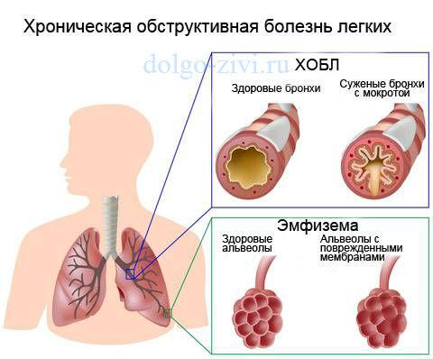 хронический обструктивный бронхит легких