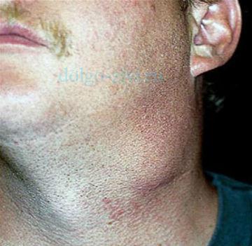 лимфогранулематоз симптомы