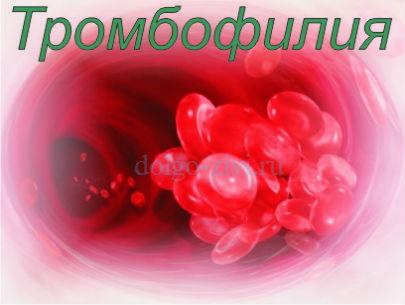 тромбофилия лечение