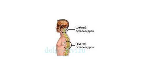 sheynyiy-i-grudnoy-osteohondroz