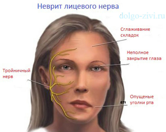 Запущенный неврит лицевого нерва как лечить