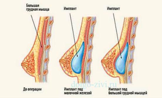 Пластическая операция по увеличению груди отзывы