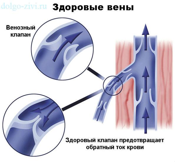 бесплодие и лапароскопия
