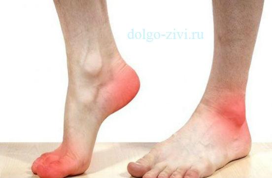 больные стопы