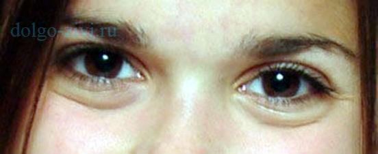 мешки под глазами у девушки