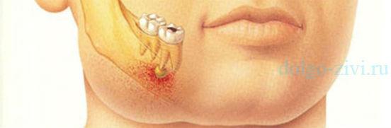 нарыв на корне зуба