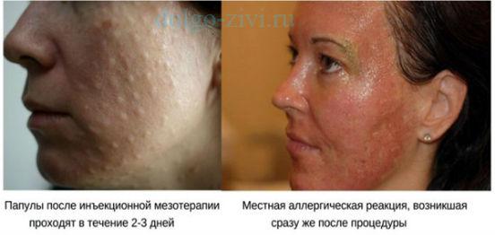 осложнения мезотерапии