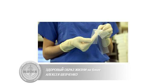 сетчатые тазовые имплантаты