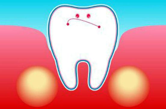 зуб в десне