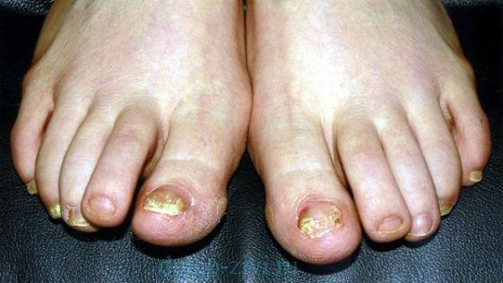 грибковые ногти на ногах