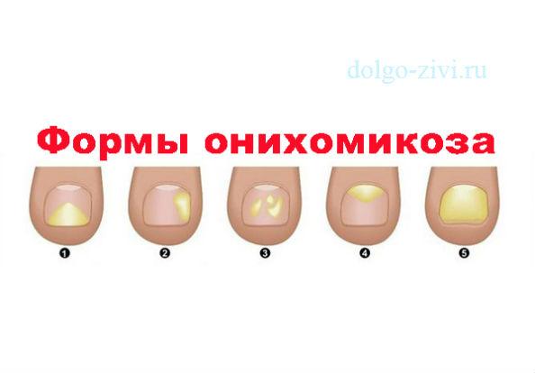 формы онихомикоза