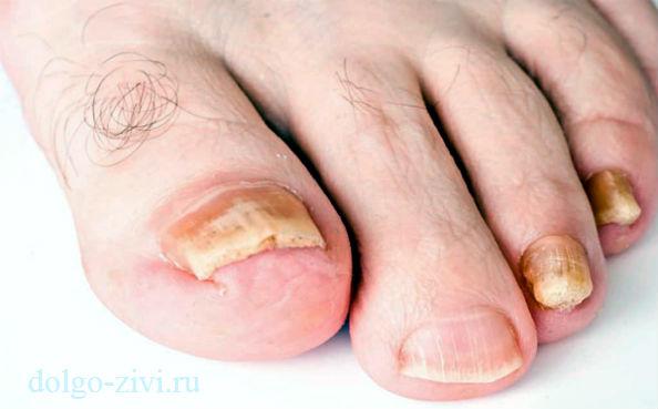 грибковые утолщенные ногти