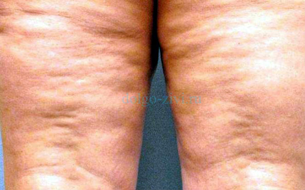 рыхлые ноги