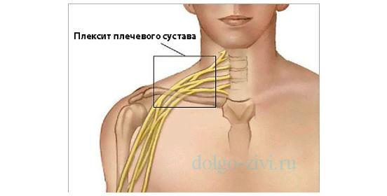Весной заболели плечевые суставы кистевые суставит
