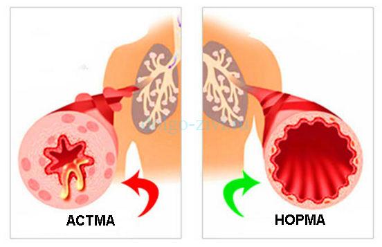 Как победить бронхиальную астму у детей