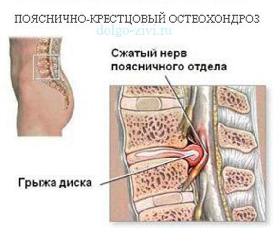 Йога при остеохондрозе поясничного отдела позвоночника