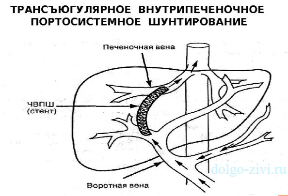 Лекарство от давления при гепатите в форум