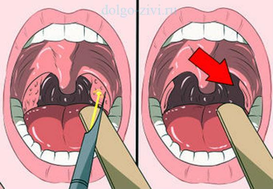 избавиться от пробок в горле