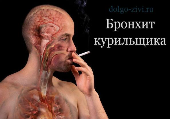 бронхи курильщика