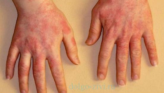 аллергия на смолу
