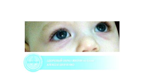 мешки под глазами у ребенка