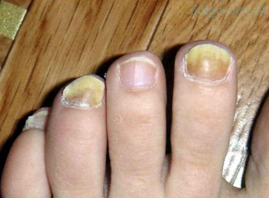 грибковые ногти