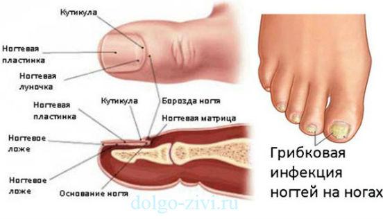 грибковая инфекция на ногах