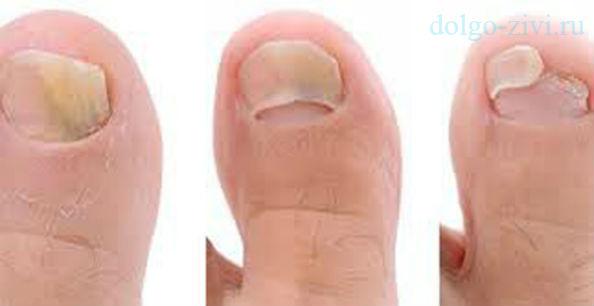 развитие ногтевого грибка