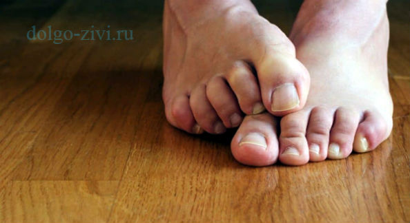 чешутся ноги