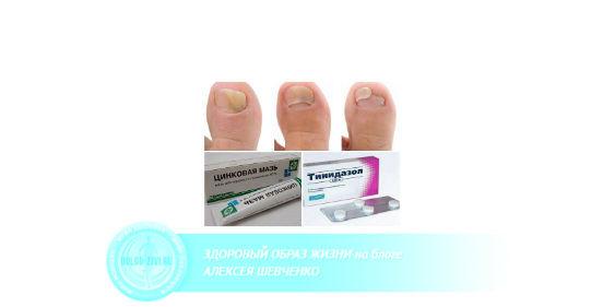 препараты от грибка ногтей на ногах