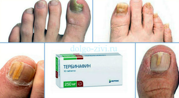 таблетки тербинафин