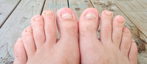 микоз ногтевых пластинок