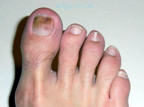 нормотрофическая форма грибка ногтей