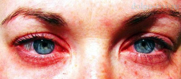 красные глаза при гриппе