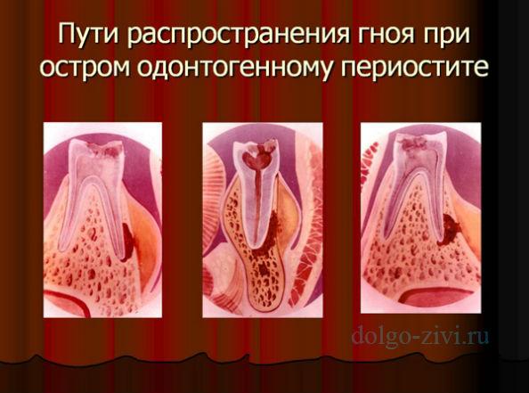лечение одонтогенного периостита