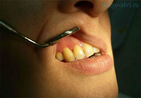 одонтогенный периостит челюстей