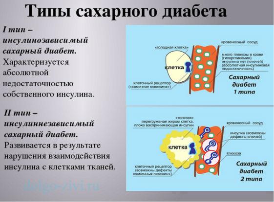 диабет 1 и 2
