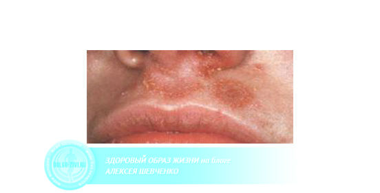 инфицированный нос