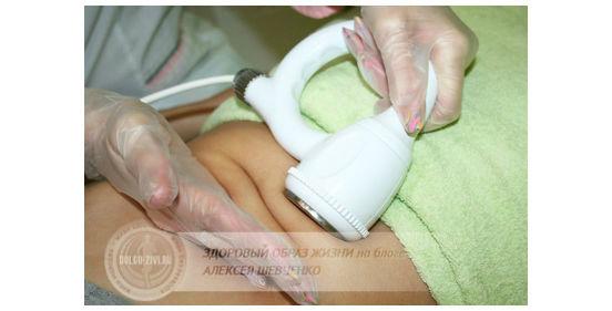процедура ультразвуковой липосакции