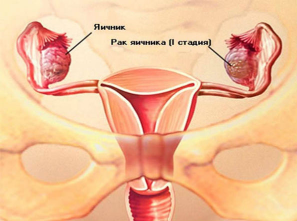2 стадия рака яичника