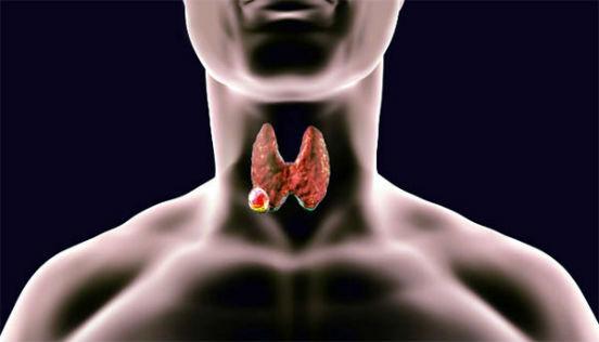 раковый узел на щитовидке