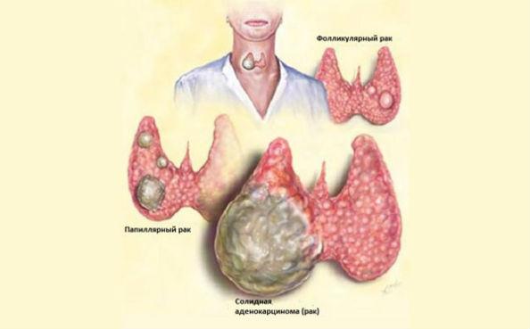 рост опухоли щитовидки