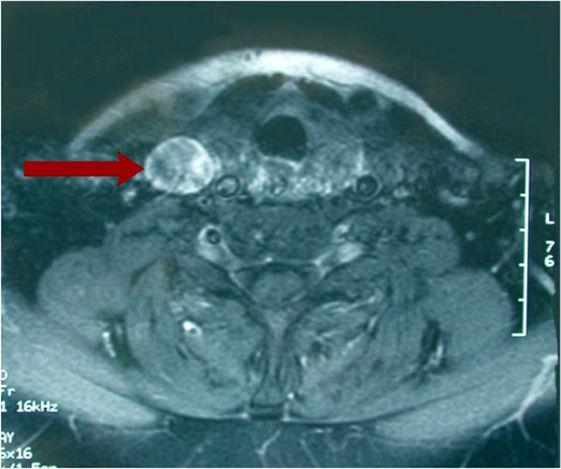 томограмма рака