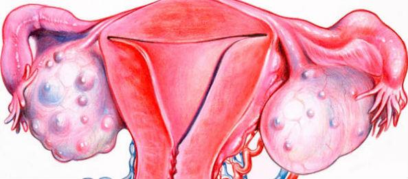 злокачественная опухоль яичников