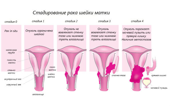 4 стадии рака шейки матки