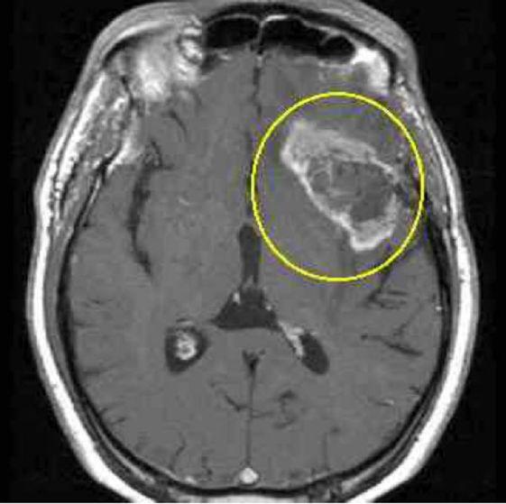 МРТ рака мозга