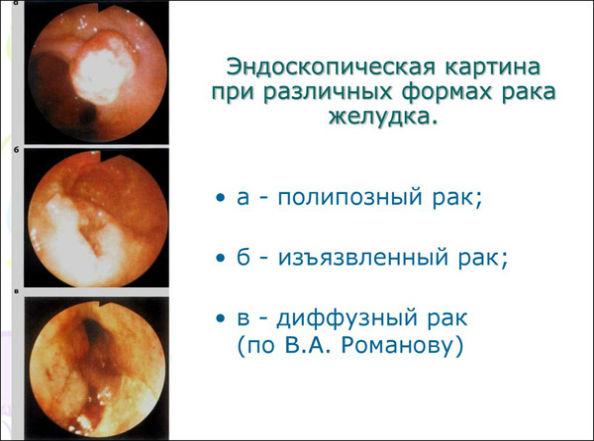 фотографии рака желудка