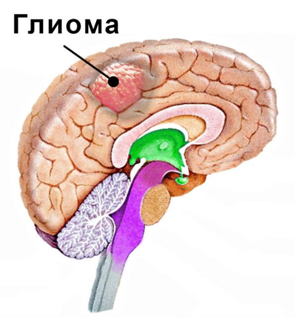 глиома в мозгу