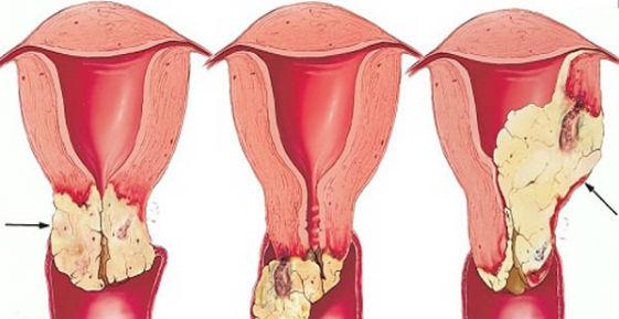 начало рака шейки матки